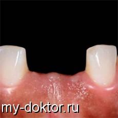 Адентия - MY-DOKTOR.RU