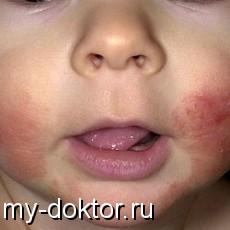 Аллергия у малыша – действуй немедленно! - MY-DOKTOR.RU