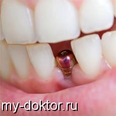 Ассортимент зубных имплантов – разбираемся в качестве и доступности - MY-DOKTOR.RU