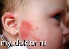 Что такое гистаминовая реакция? Аллергия - MY-DOKTOR.RU