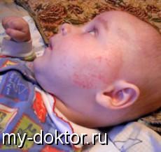 Диатез у грудничков - MY-DOKTOR.RU