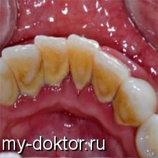 Эффект бумеранга бывает и на зубах - MY-DOKTOR.RU
