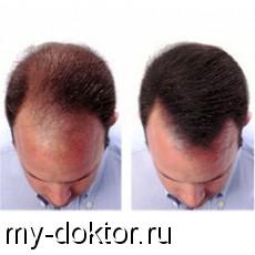Эффективные средства от выпадения волос - MY-DOKTOR.RU
