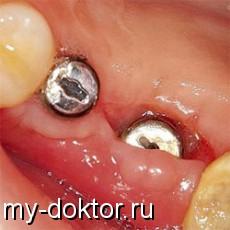 Формирование десны: имплантация зуба - MY-DOKTOR.RU