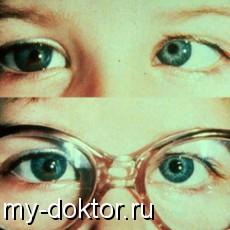 Гетерофория - усталость глаз - MY-DOKTOR.RU