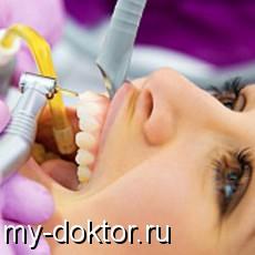 Глубокий кариес. Причины его появления и процесс лечения - MY-DOKTOR.RU