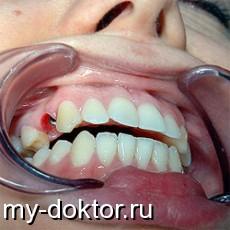 Имплантация: «за» и «против» - MY-DOKTOR.RU