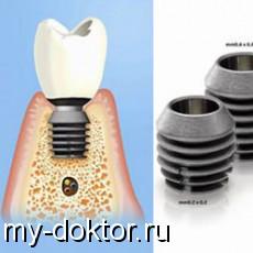 Импланты Bicon и их особенности - MY-DOKTOR.RU