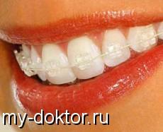 Инвизилайн - идеальная улыбка без использования брекетов - MY-DOKTOR.RU