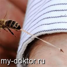 Как лечить укусы пчёл и ос - MY-DOKTOR.RU