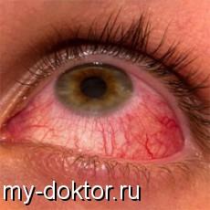 Как распознать и победить конъюнктивит - MY-DOKTOR.RU