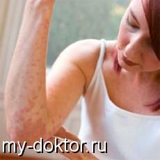 Как устранить аллергические пятна? Причины, советы и профилактика - MY-DOKTOR.RU