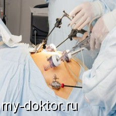 Как вылечить грыжу живота без операции в домашних условиях - MY-DOKTOR.RU