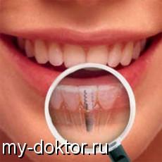 Какие зубные импланты самые лучшие - MY-DOKTOR.RU