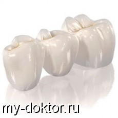 Какой зубной протез выбрать - MY-DOKTOR.RU