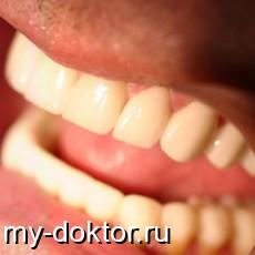 Киста зуба - симптомы и лечение - MY-DOKTOR.RU