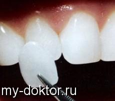 Коррекция зубов с помощью виниров - MY-DOKTOR.RU
