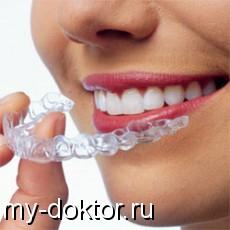 Метод домашнего отбеливания зубов с помощью каппы - MY-DOKTOR.RU