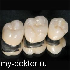 На Ваши вопросы отвечает врач стоматолог - MY-DOKTOR.RU