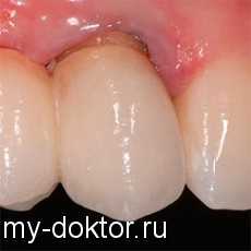 На вопросы пациентов отвечает врач стоматолог - MY-DOKTOR.RU