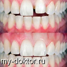 Наращивание зубов - MY-DOKTOR.RU