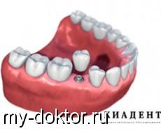 Одноэтапная имплантация зубов — за и против - MY-DOKTOR.RU