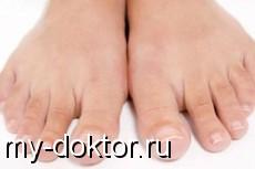 Онихомикоз: грибок поражает ногти - MY-DOKTOR.RU