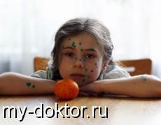 Особенности протекания ветряной оспы у детей - MY-DOKTOR.RU