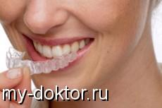 Отбеливание зубов – лучезарная улыбка - MY-DOKTOR.RU