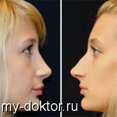 Открытая и закрытая ринопластика - MY-DOKTOR.RU