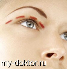 Пластическая хирургия век. Блефаропластика - MY-DOKTOR.RU