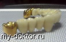 Проблема поломки металлокерамических зубных протезов - MY-DOKTOR.RU