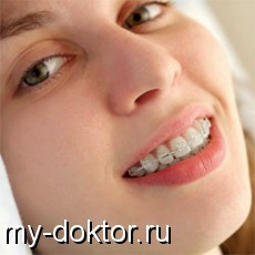 Различные виды брекетов - MY-DOKTOR.RU
