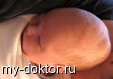 Синдромы, сопровождающиеся утечкой воздуха у новорожденных - MY-DOKTOR.RU
