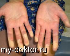 Склеродермия - MY-DOKTOR.RU