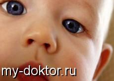 Содружественное косоглазие - MY-DOKTOR.RU