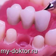 Съемное и несъемное протезирование - MY-DOKTOR.RU
