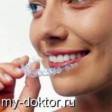 Съёмные ретейнеры - MY-DOKTOR.RU