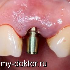 Виды зубных имплантатов - MY-DOKTOR.RU