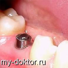 Виды зубных имплантов - MY-DOKTOR.RU