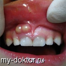 Воспалительное заболевание – зубной флюс - MY-DOKTOR.RU