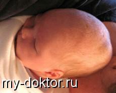 Язвенно-некротический энтероколит у новорожденных детей! - MY-DOKTOR.RU