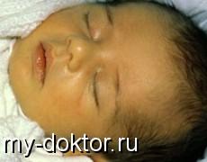 Желтуха у новорожденных. Причины и симптомы - MY-DOKTOR.RU