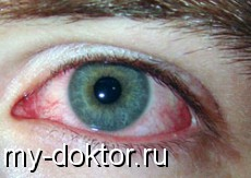 Заболевания глаз - Вопросы окулисту - MY-DOKTOR.RU
