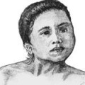 Диагностика врожденной мышечной кривошеи (ВМК) - MY-DOKTOR.RU