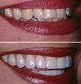 Виниры: реальная альтернатива реставрации зубов. Виды виниров. - MY-DOKTOR.RU