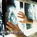 4 способа снижения риска заболевания раком - MY-DOKTOR.RU