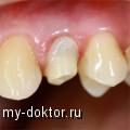 Абатменты из циркония в современной стоматологии - MY-DOKTOR.RU