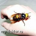 Апитерапия - лечение пчелиным ядом - MY-DOKTOR.RU