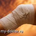 Артрит (лечение) - MY-DOKTOR.RU